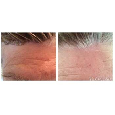 beautystrips-before-after-12